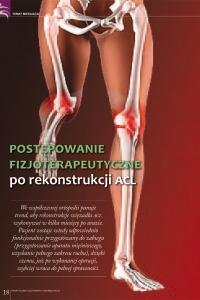 Rekonstrukcja-ACL---postępowanie-fizjoterapeutyczne-1