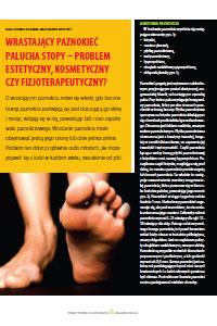 Wrastający paznokieć palucha stopy Problem estetyczny, kosmetyczny czy fizjoterapeutyczny?