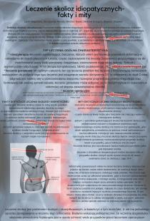 Leczenie skolioz idiopatycznych- fakty i mity
